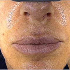 Estetica bocca