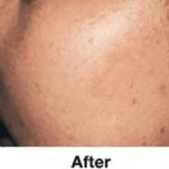 macchie del viso