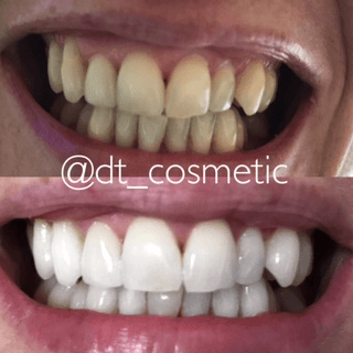 before and after of teeth whitening