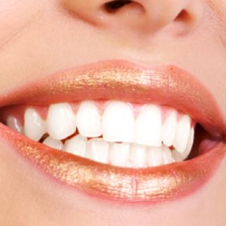 denti bianchi, faccette in ceramica