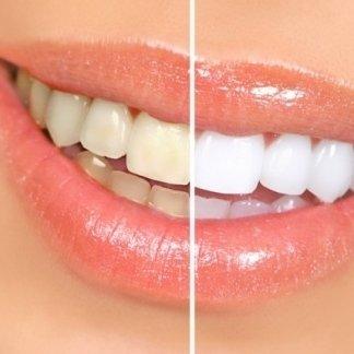 ricostruzione smalto dentale