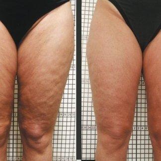 carbossiterapia anticellulite