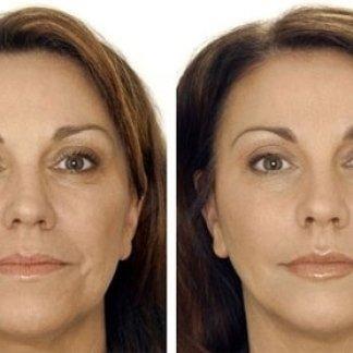 trattamento estetico acido ialuronico