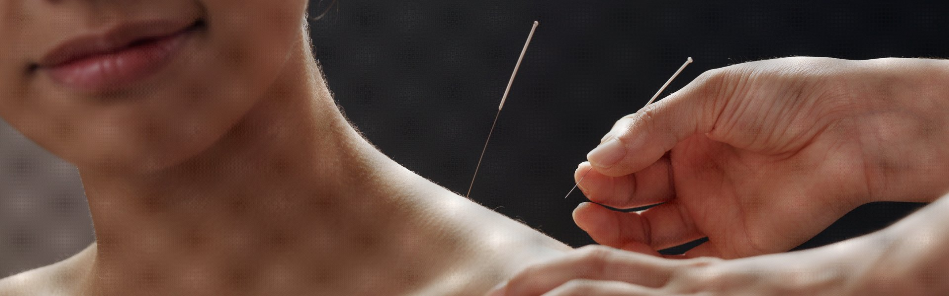 Skilled acupuncturist serving the local community