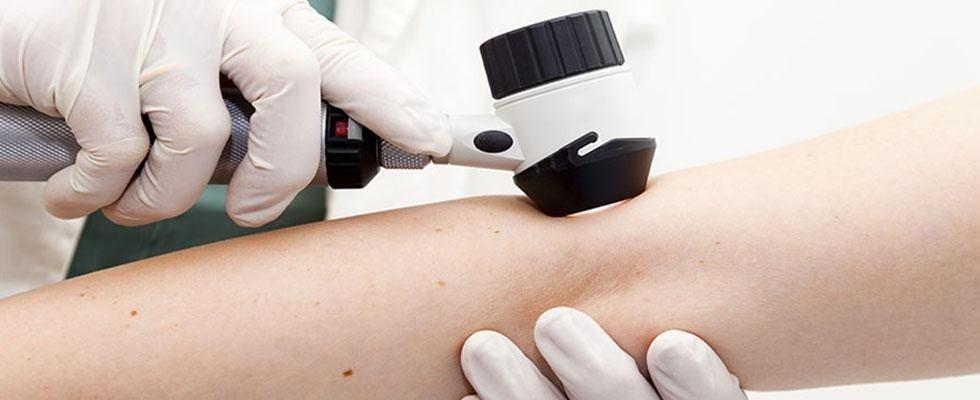 Controllo eczemi