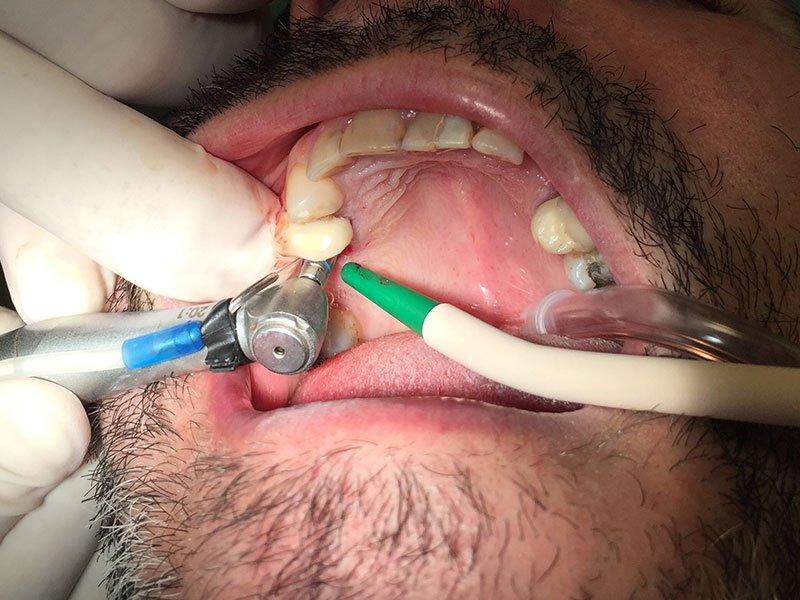 Stampo di una bocca
