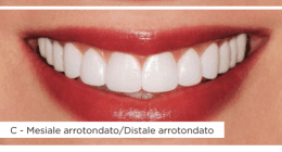 faccette dentali lumineers