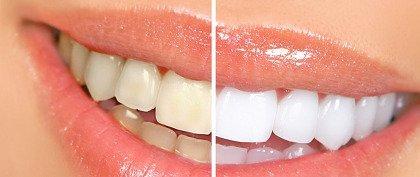 differenza di colore tra i denti