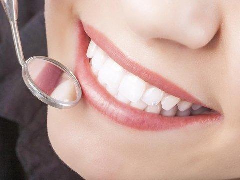 Sbiancamento dentale Como