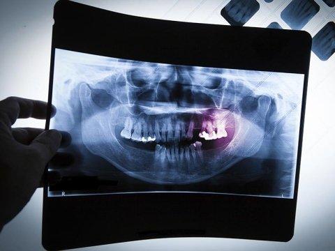 Radiologia dentale Como