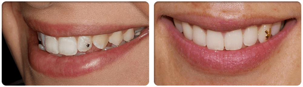 Cosmetic Dental Surgery: TOOTH JEWELLERY