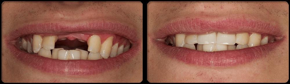 Emergency Dentist: PARTIAL DENTURE