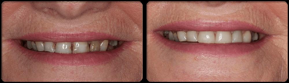 Cosmetic Dental Surgery: COMPOSITE VENEERS