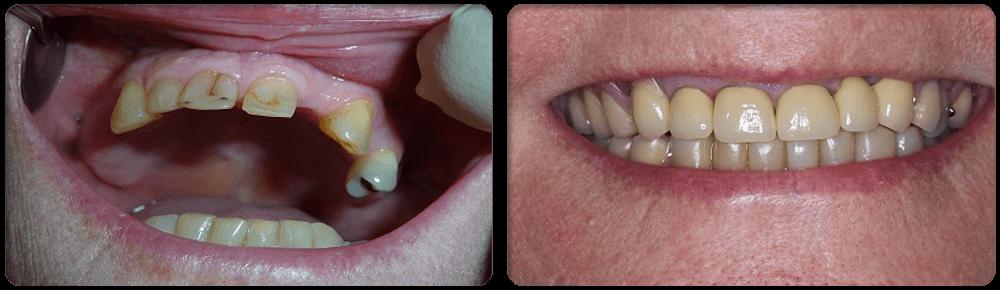 Shellharbour Dental: FULL MOUTH REHABILITATION