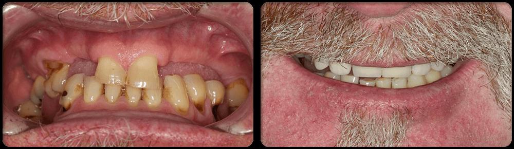 Dentist Shellharbour: FULL MOUTH REHABILITATION