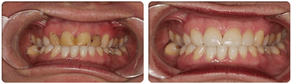 Cosmetic Dental Surgery: PORCELAIN CROWNS