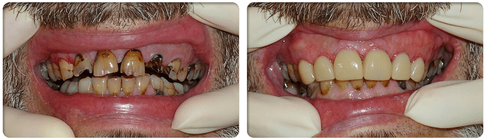 Cosmetic Dental Surgery: BONDING