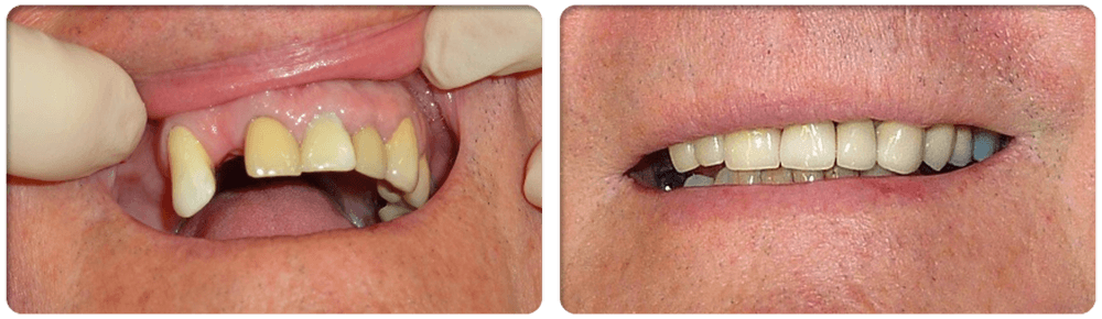 Before and after dental implants in Shellharbour