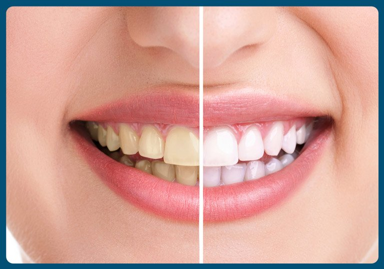 shellharbour-treatments-whitening
