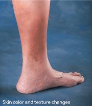 Varicose Veins | Houston Vein Doctor