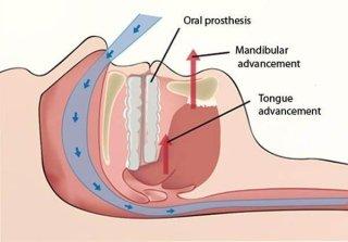 Terapia odontoiatrica delle apnee ostruttive del sonno