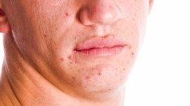 Zanni Dr. Maurizio, Bologna (BO), acne