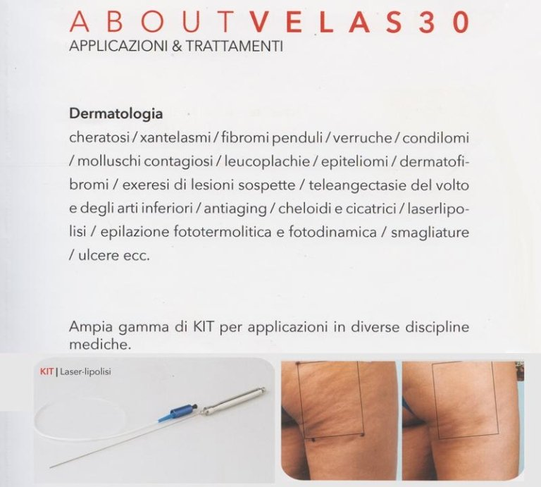 Laser VelaS30