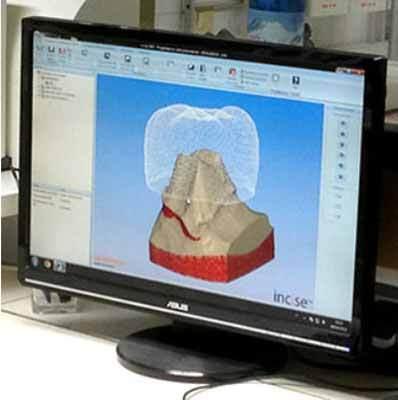 un'immagine al computer di un dente