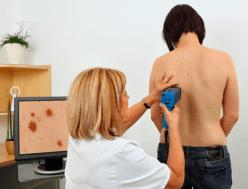 prevenzione dei tumori della pelle