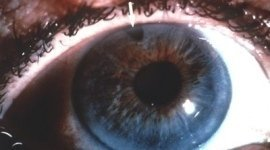 terapia cura glaucoma