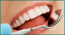 controllo carie, visita dentistica, prevenzione dentale