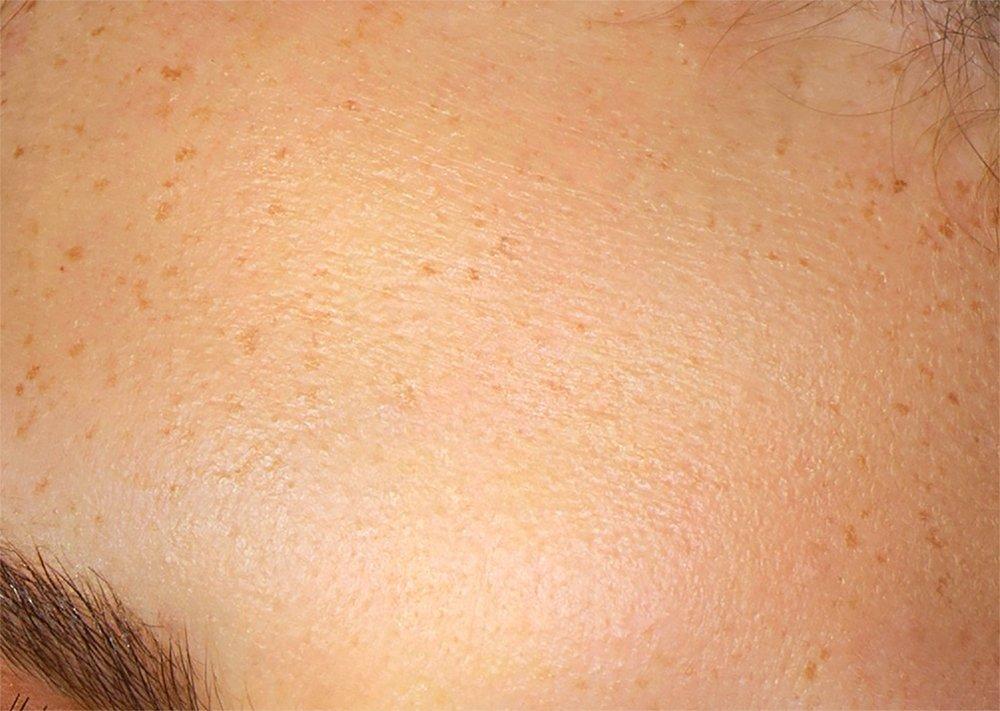 Sử dụng Frequency Separation để xử lý hậu kỳ da