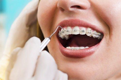 Dentista scorrendo l'apposizione del correttore della giovane