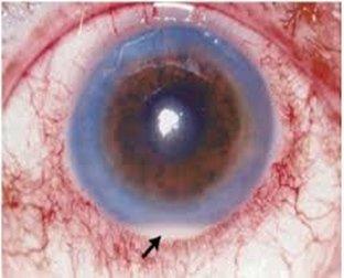 infiammazione occhio