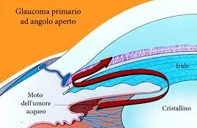 forme di glaucoma