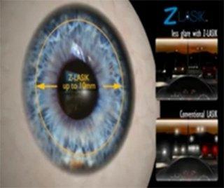 laser per la miopia