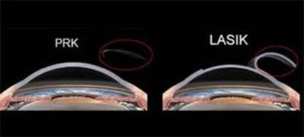 cheratectomia fotorefrattiva