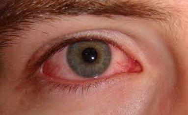 allergie occhio