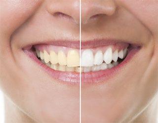 Teeth Whitening New Canaan, CT