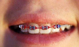 apparecchi-ortodontici