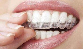 apparecchi-ortodontici-invisibili