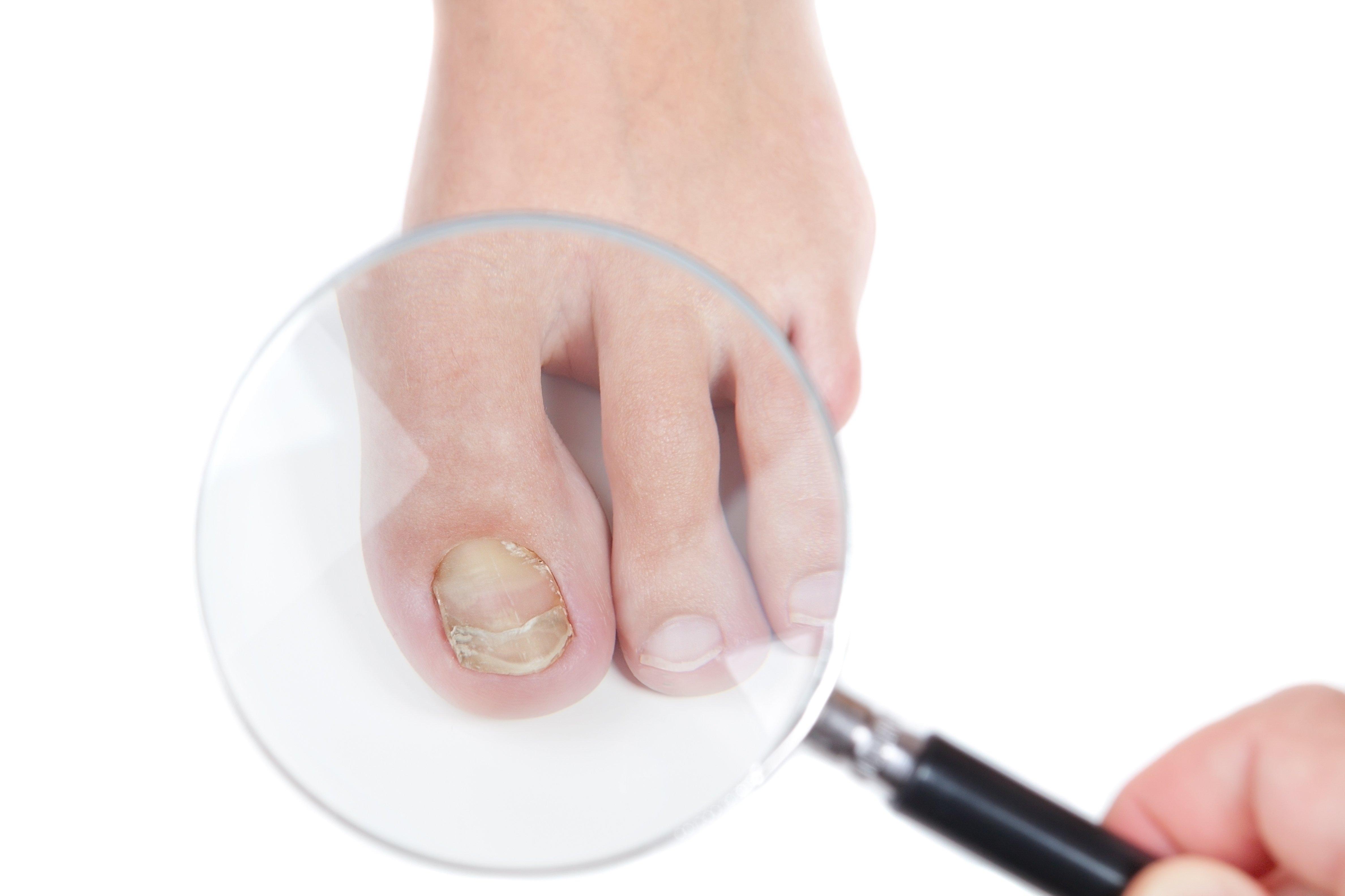 Toenail Fungus   Podiatrist
