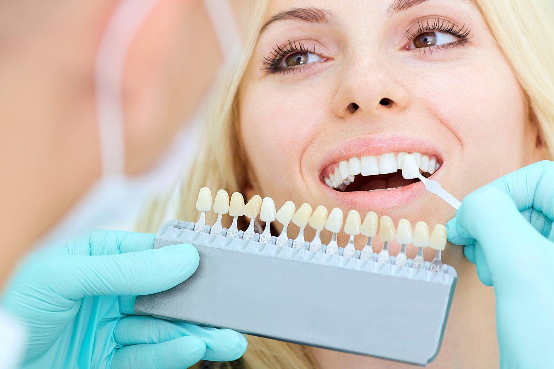 Dentista applica faccette sui denti di una paziente