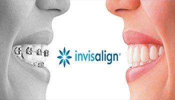 ortodonzia invisibile invisalign
