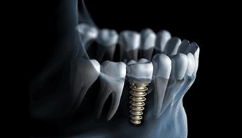 Impianti dentali su dente singolo