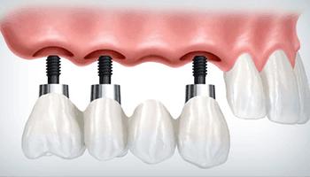 Impianti dentali su per denti multipli