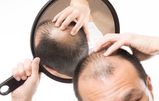 Alopecia androgenetica: di che cosa si tratta esattamente ...