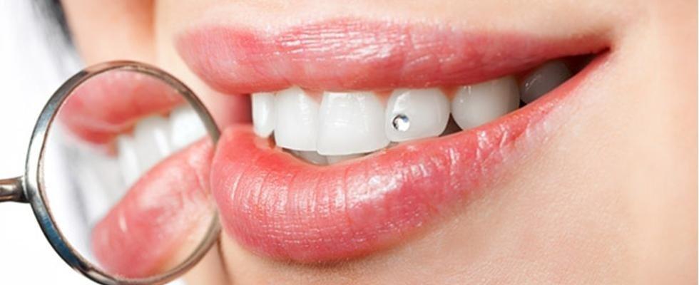 applicazione diamantino su denti rieti