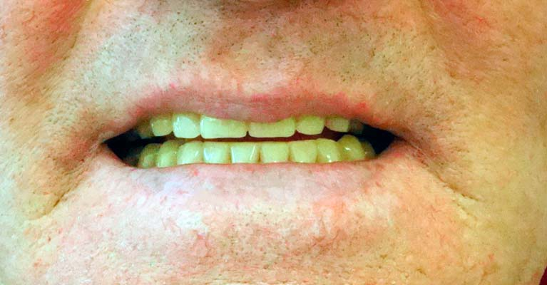 After - new dentures