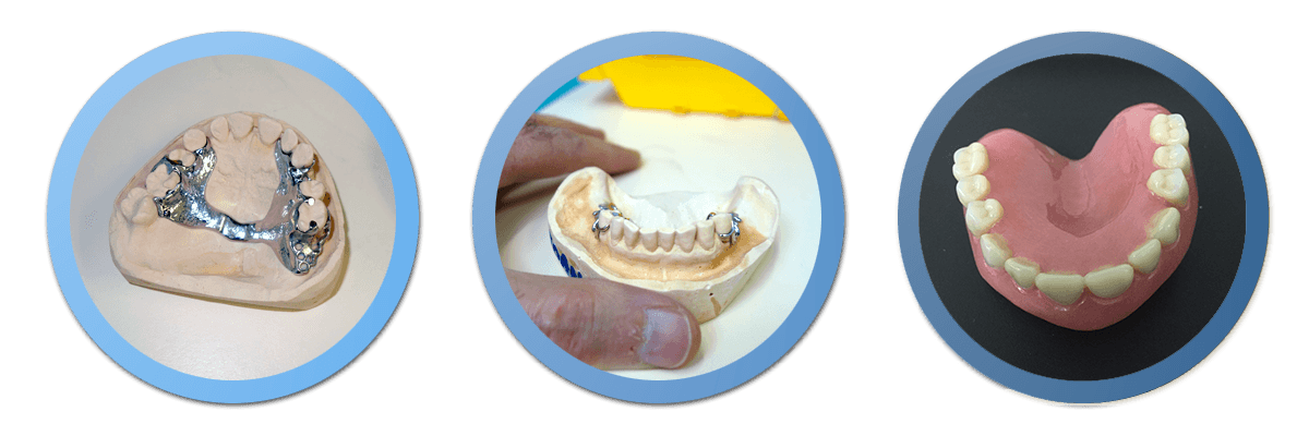 Right Denture Tooth Denture